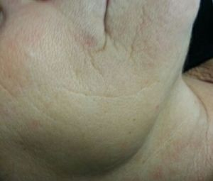 A 45 min. Rejuveskin Skin Treatment, based on Abamav..